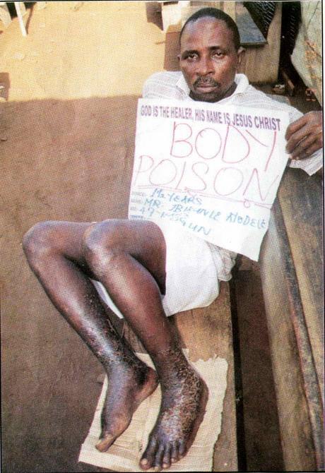 Мистер Ibikunle Ayodele пришел в церковь Синагога с болезнью кожи. Он верит, что Бог восстановит его хорошую судьбу и совершит полное исцеление (Второзаконие 7:14-15)
