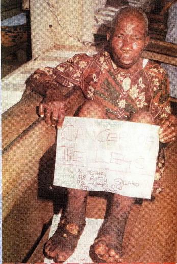 У мистера Rafiu Salako рак ног.