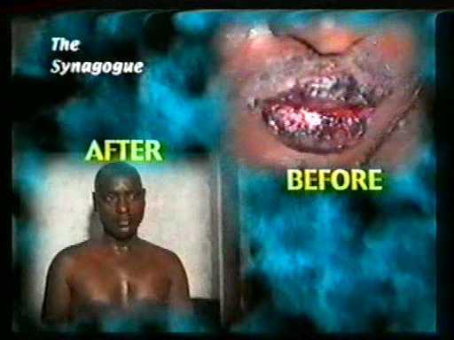 исцеление рака кожи
